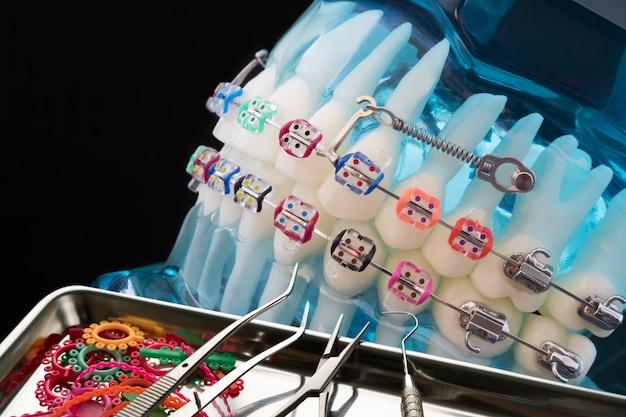 Sluit omhoog tandartshulpmiddelen en orthodontisch model Premium Foto