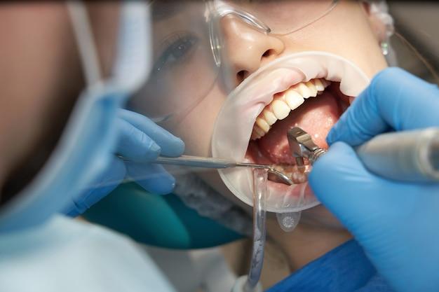 Tandarts die een tandheelkundige behandeling op een vrouwelijke patiënt doet. tandarts behandeling van de tanden van een patiënt in moderne tandheelkunde kantoor Premium Foto