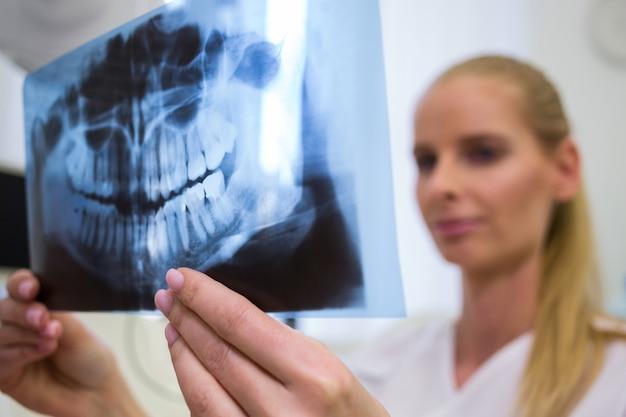 Tandarts die tand x-ray plaat bekijkt Gratis Foto