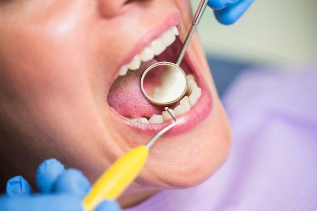Tandarts die vrouwelijke geduldige tanden onderzoekt Gratis Foto