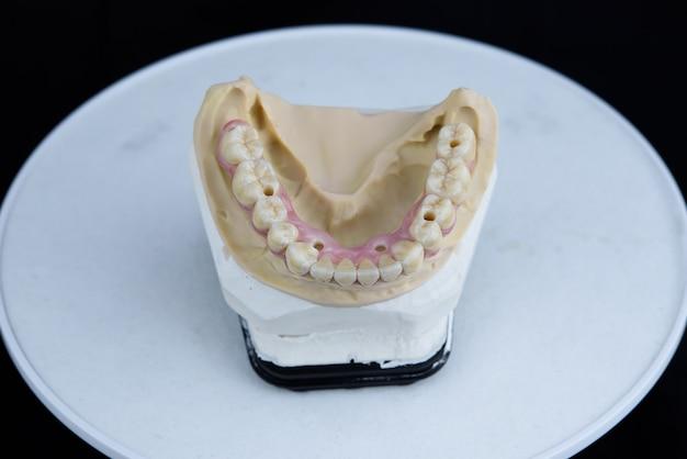 Tanden keramiek kunstgebit op gedrukt acryl model in tandtechnisch laboratorium. bovenaanzicht. Premium Foto