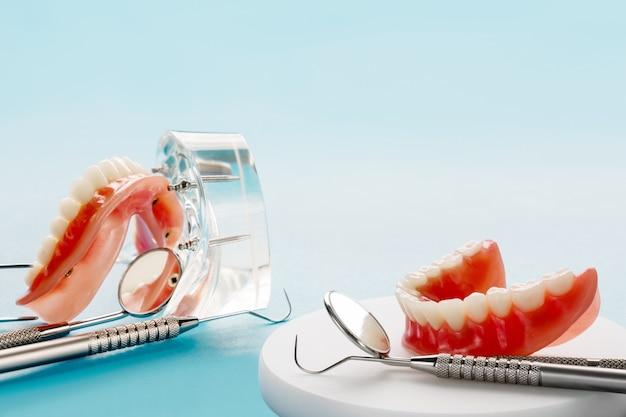 Tandenmodel met een implantaatkroonbrugmodel / tandheelkundige demonstratie tandenstudie leermodel. Premium Foto