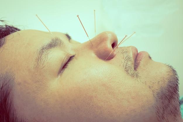 Uitstekende stijlfoto van de aziatische mens ontvangt de behandeling van de acupunctuur Gratis Foto