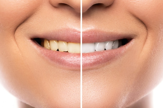 Vergelijking na het bleken van tanden Premium Foto