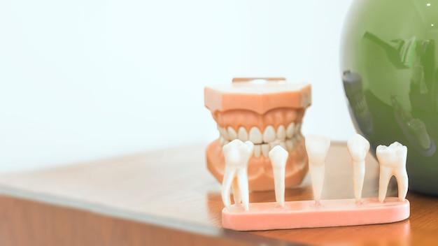 Verschillende soorten tandenmodel op tafel Gratis Foto