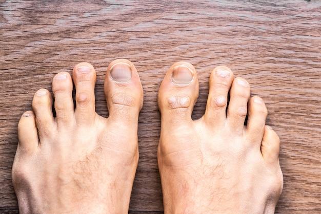 Voeten van de man op blote voeten met psoriasis dermatitis op zijn vingers. Premium Foto