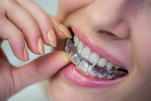 Vrouw die orthodontische onzichtbare steunen van silicone draagt Gratis Foto
