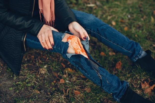 Vrouw met een beenblessure. het gewonde meisje dat bij de boom zit. de wond bloedt. Gratis Foto