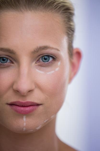 Vrouw met merken getrokken voor botox procedure Gratis Foto
