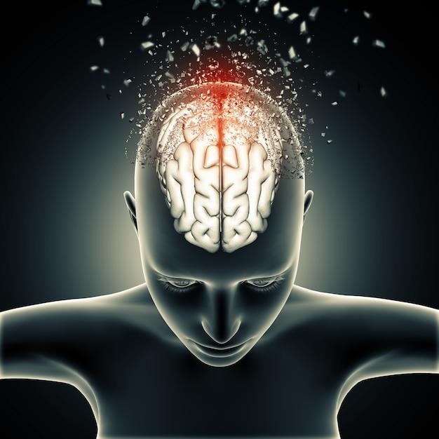Vrouwelijke medische figuur met desintegrerende hersenen Gratis Foto