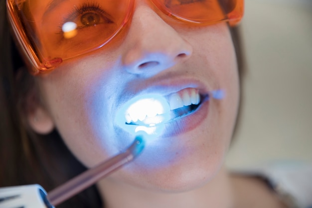 Vrouwelijke patiënt met veiligheids beschermende glazen die door lasertanden gaan die in kliniek witten Gratis Foto