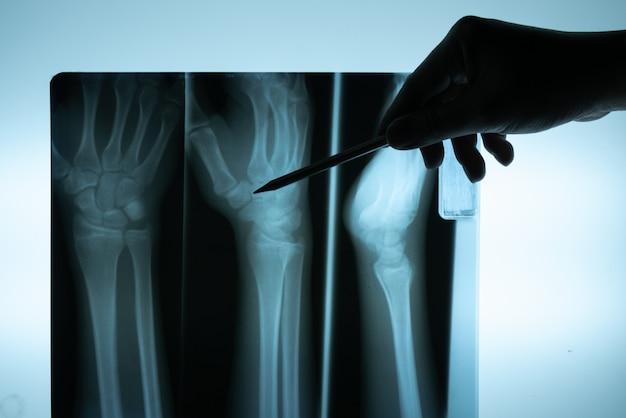 X-ray film met de hand van de arts om te onderzoeken Premium Foto