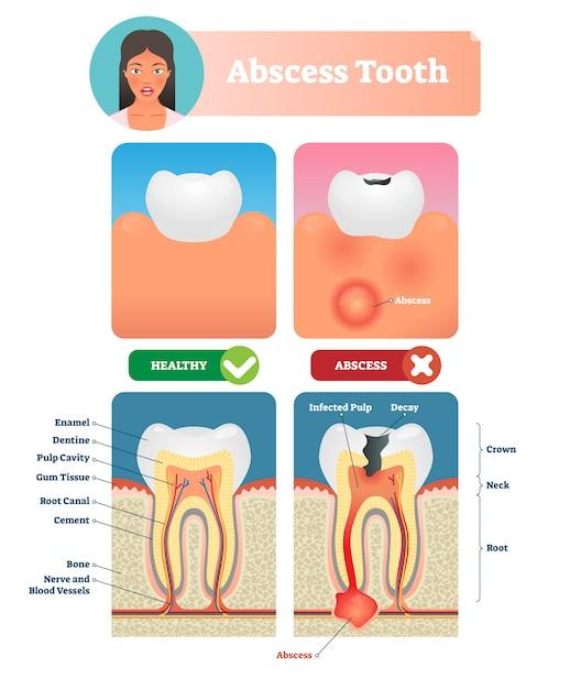 Abces tand illustratie. gelabeld medisch diagram met structuur. Premium Vector