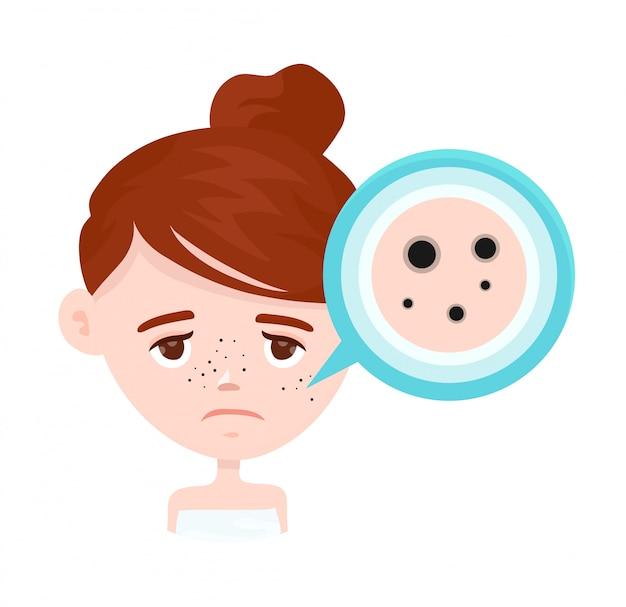 Acne, zwarte vlekken op het gezicht van het meisje Premium Vector