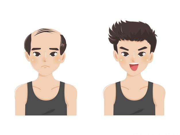 Cartoon vectorillustratie van een kale man met nieuw haar. Premium Vector