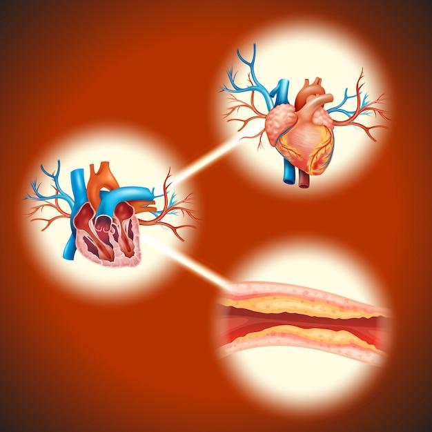 Cholesteral in menselijk hart Gratis Vector