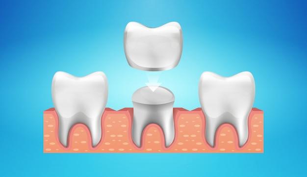 Dental crown restoration in realistische stijl. Premium Vector