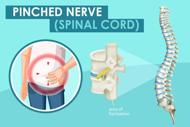 Diagram met beknelde zenuw bij de mens Gratis Vector