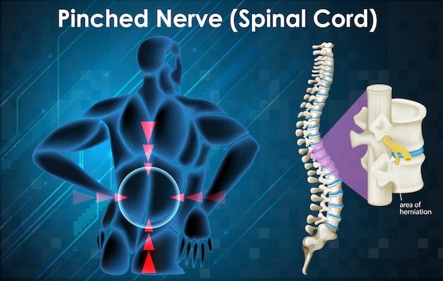 Diagram met geknepen zenuw op mens Gratis Vector