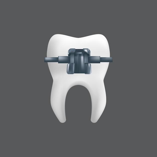 Een tand met een metalen beugel. orthodontische behandeling concept. realistische afbeelding van een tandheelkundig keramisch model geïsoleerd op een grijze achtergrond Premium Vector