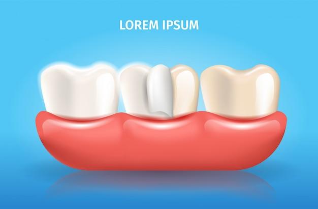 Fineerlaag realistische vector dental poster Premium Vector