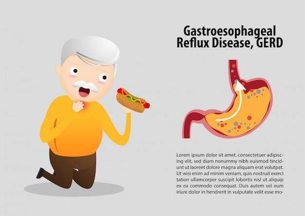 Gastro-oesofageale refluxziekte (gerd) Premium Vector