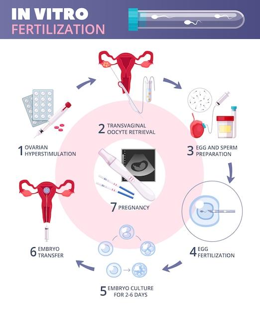Gekleurde platte in-vitrofertilisatie ivf-infographics met stappen van ovariële heupstimulatie tot zwangerschap Gratis Vector