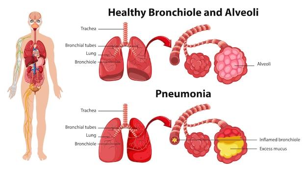 Gezonde en ongezonde menselijke longen Gratis Vector