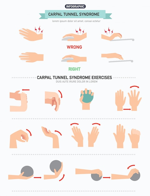 Handworteltunnelsyndroom infographic Premium Vector