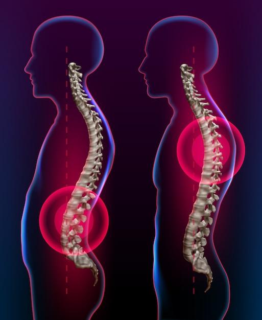 Illustratie van rugpijn als medisch gezondheidszorgconcept voor spinale gezondheid en therapie Premium Vector