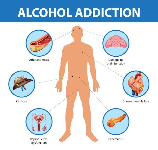 Infographic alcoholverslaving of alcoholisme informatie Gratis Vector