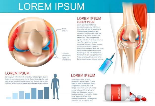 Infographic behandelingsmethode reumatoïde artritis Premium Vector
