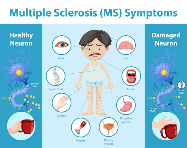 Infographic over multiple sclerose (ms) symptomen Gratis Vector