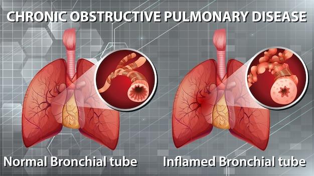 Informatieve illustratie van chronische obstructieve longziekte Gratis Vector