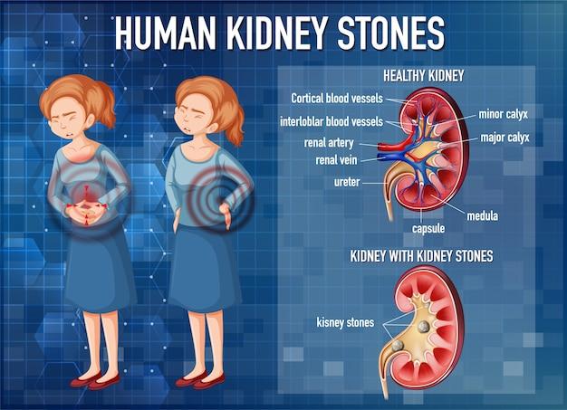 Informatieve illustratie van nierstenen Gratis Vector