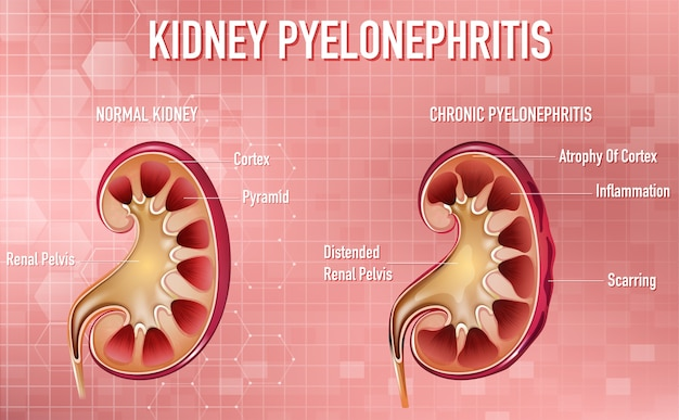 Informatieve illustratie van pyelonefritis Gratis Vector