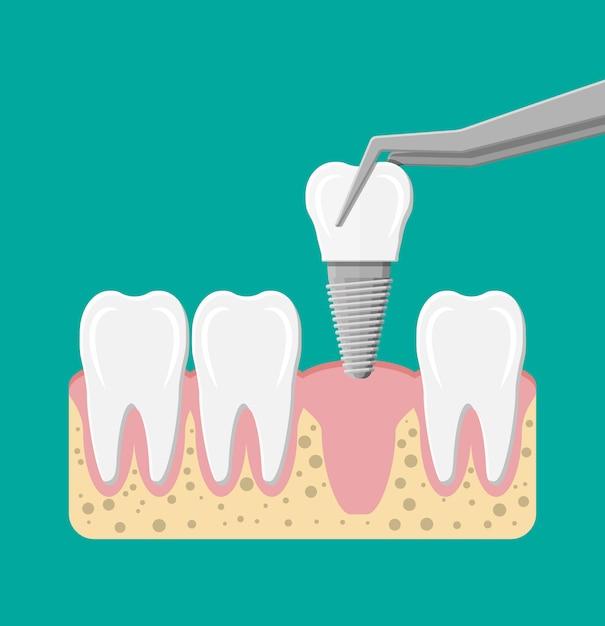 Installatie van het tandheelkundig implantaat Premium Vector