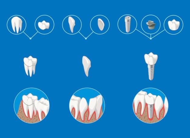 Isometrische prothetische tandheelkunde infographic sjabloon met kroonfineer Gratis Vector