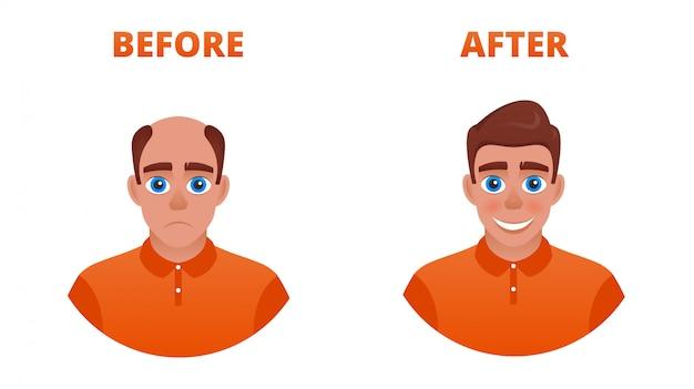 Kale man na haartransplantatie. het resultaat van het gebruik van minoxidil. het dragen van een pruik Premium Vector
