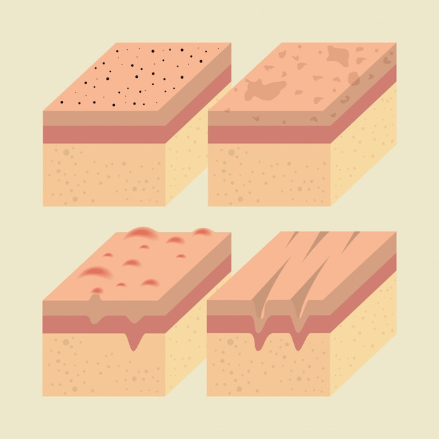 Lagen van huidtypen Gratis Vector