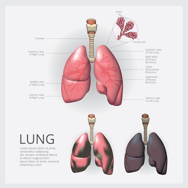 Long met detail en longkanker vectorillustratie Premium Vector