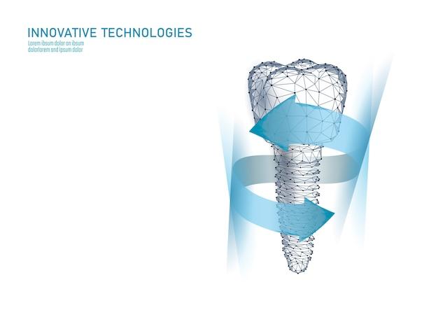Maaltand tandheelkundig implantaat 3d laag poly geometrisch model. Premium Vector