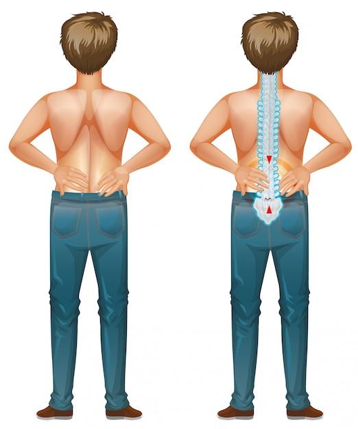 Menselijk mannetje met rugpijn Gratis Vector