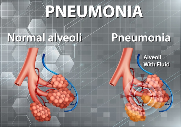 Menselijke anatomie met longontsteking Gratis Vector