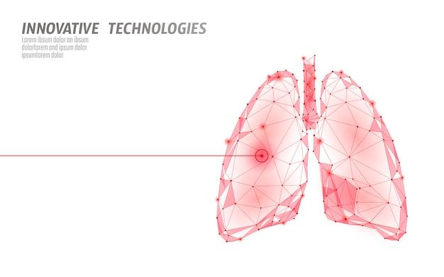 Menselijke longen laserchirurgie operatie laag poly. geneeskunde ziekte medicamenteuze behandeling pijnlijk gebied. rode driehoeken veelhoekige 3d render vorm. apotheek tuberculose kanker sjabloon illustratie Premium Vector