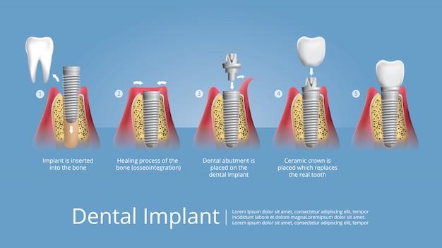 Menselijke tanden en tandheelkundige implantaat vectorillustratie Premium Vector