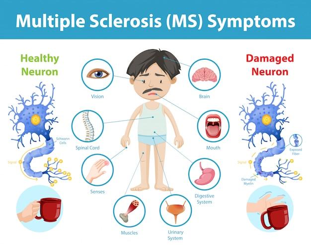 Multiple sclerose (ms) symptomen informatie infographic Gratis Vector