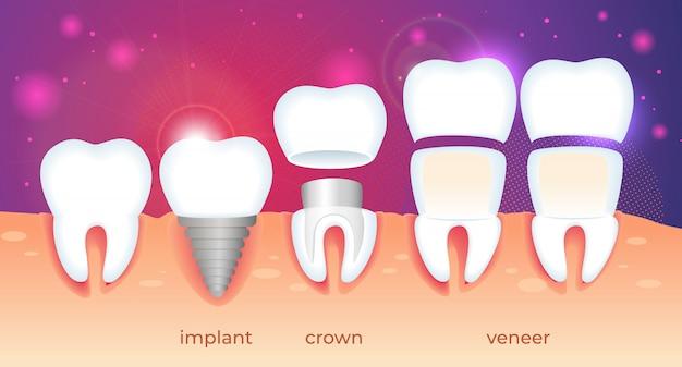 Orthodontische restauratie Premium Vector