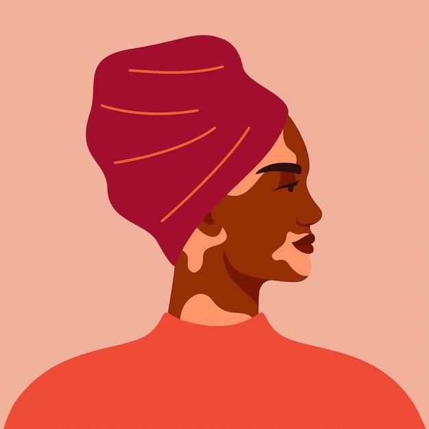 Portret van zwarte met vitiligo die tulband draagt. illustratie Premium Vector