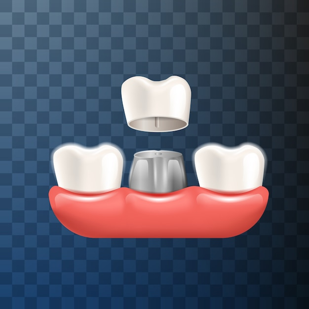 Realistische illustratie tandheelkundige kroon in 3d-vector Premium Vector
